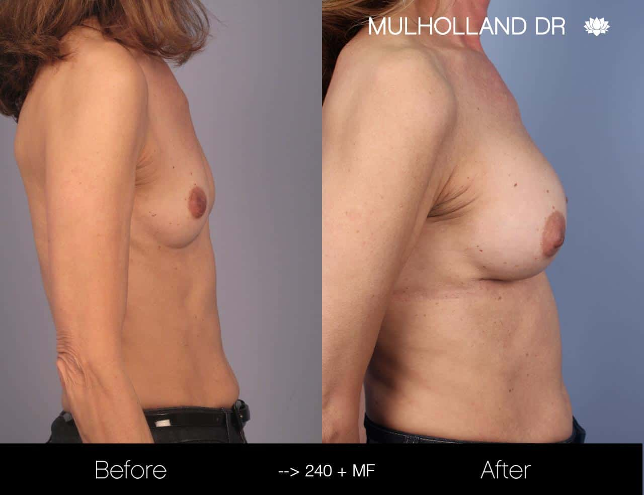 Fat Grafting Breast Augmentation - Before and After Gallery – Photo 22