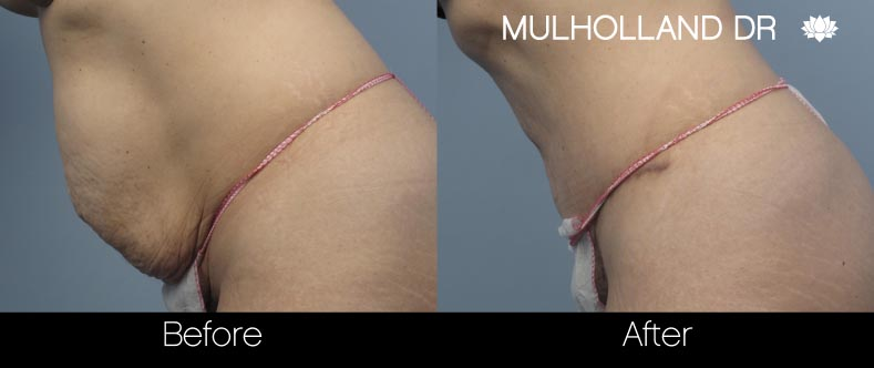 Mini Tummy Tuck - Before and After Gallery – Photo 23