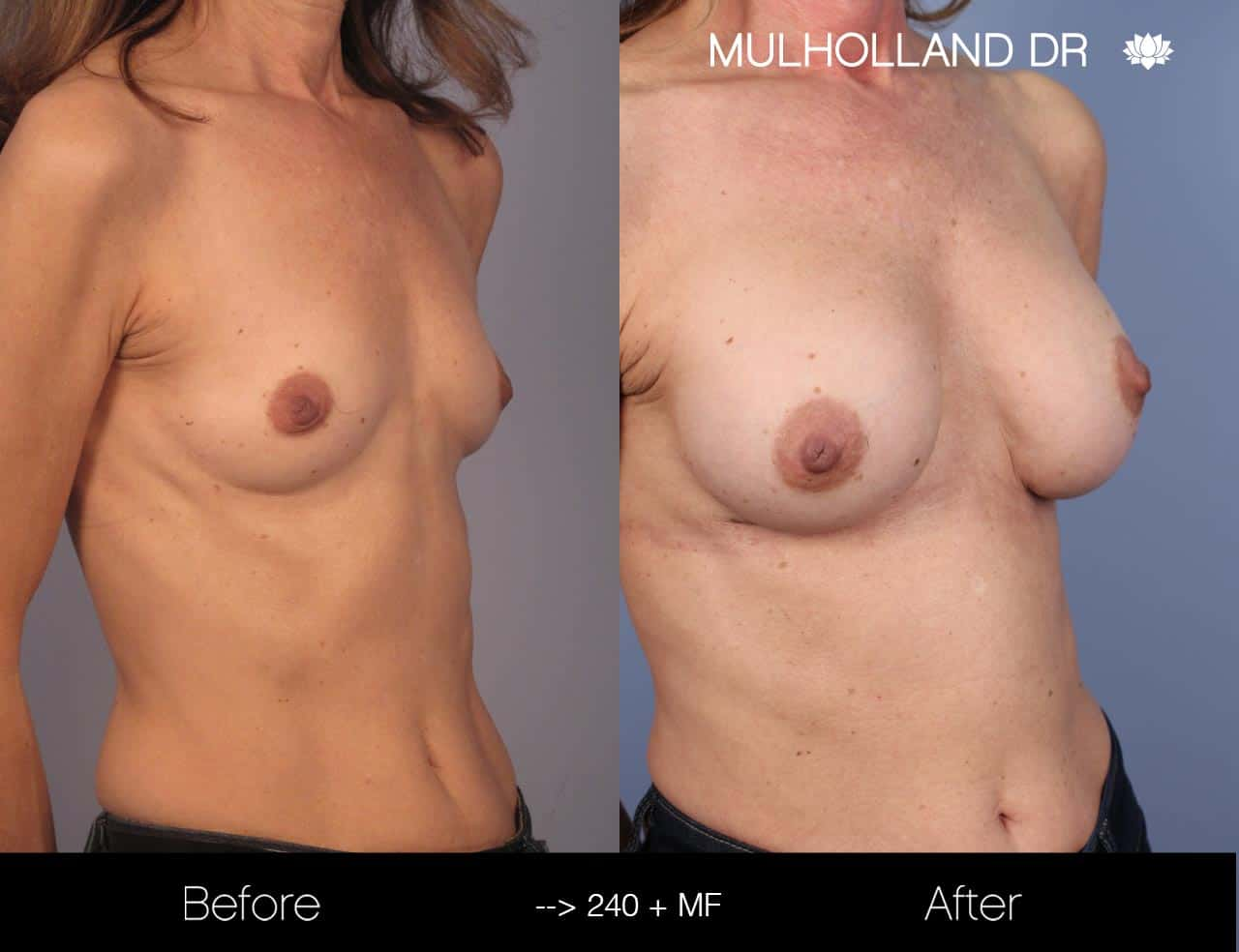 Fat Grafting Breast Augmentation - Before and After Gallery – Photo 23