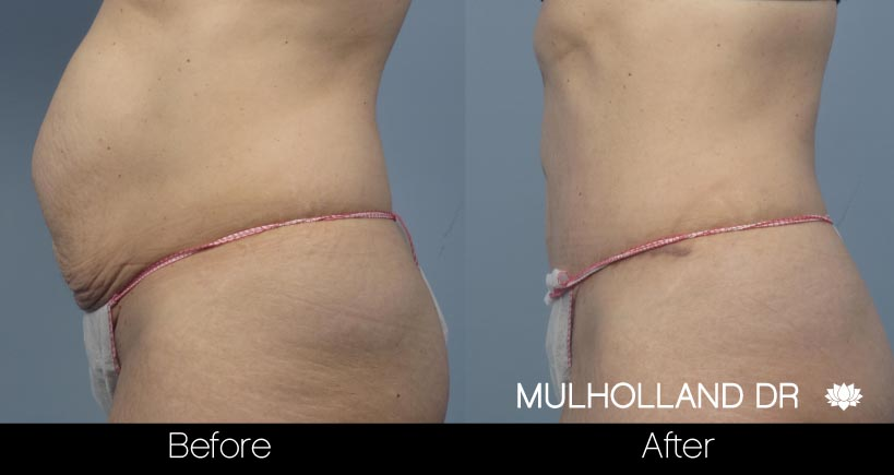 Mini Tummy Tuck - Before and After Gallery – Photo 24