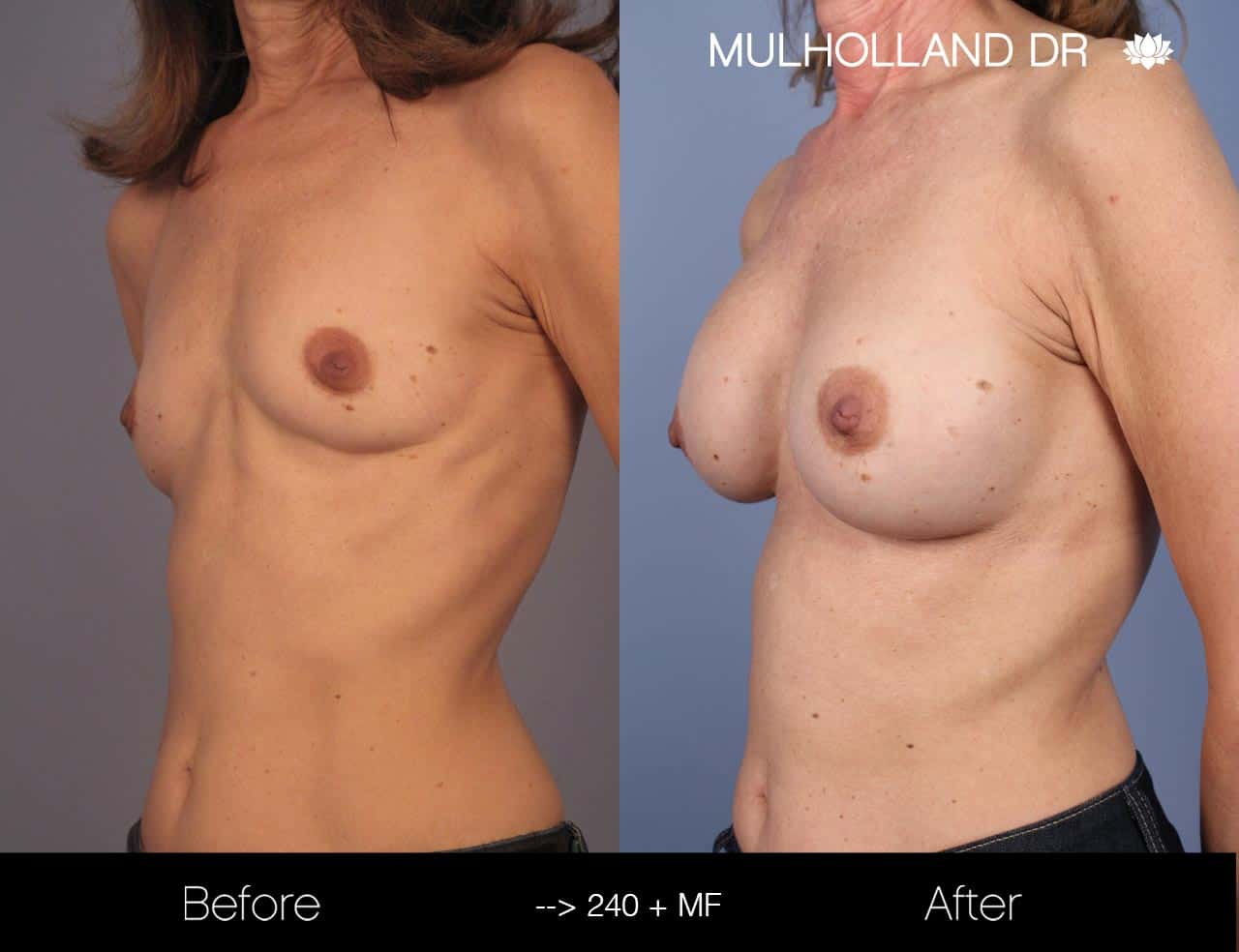 Fat Grafting Breast Augmentation - Before and After Gallery – Photo 24