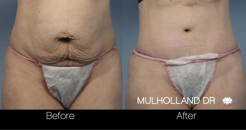 Mini Tummy Tuck - Before and After Gallery – Photo 25