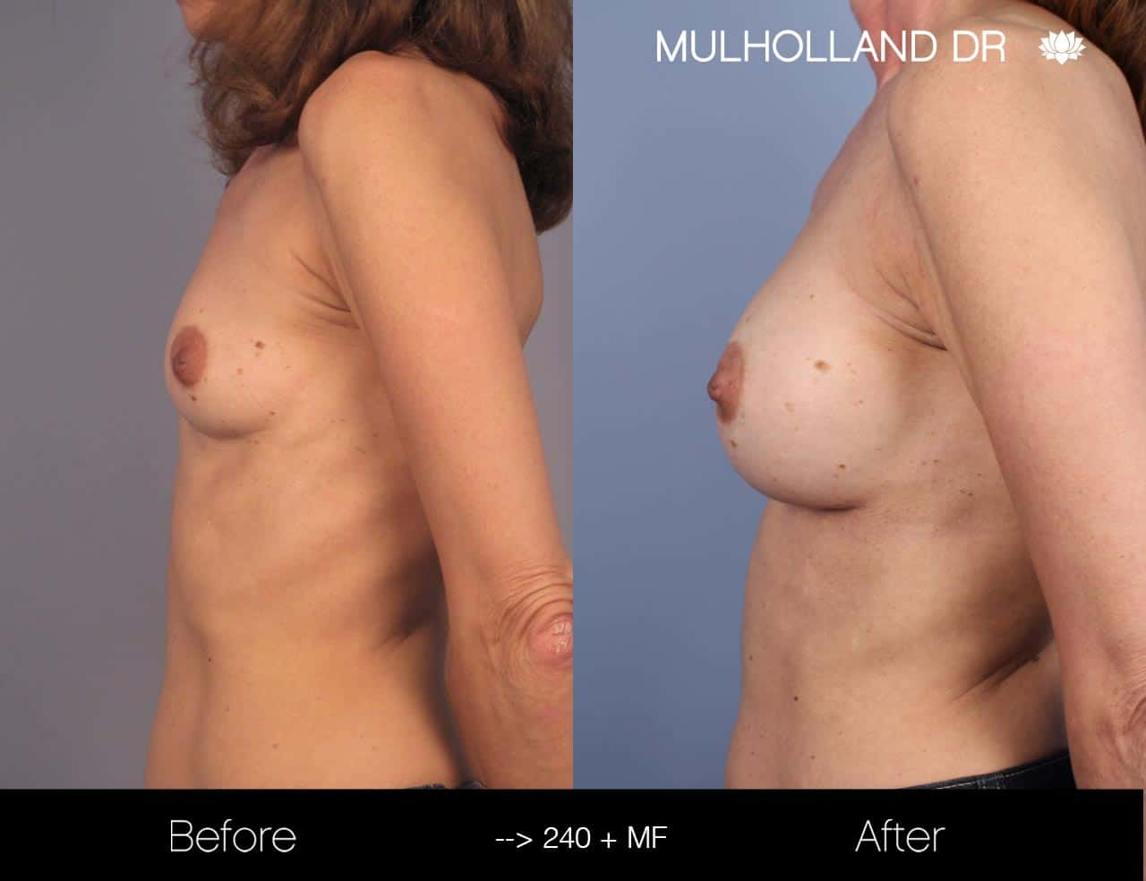 Fat Grafting Breast Augmentation - Before and After Gallery – Photo 25