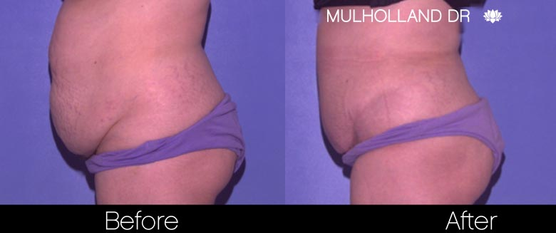 Mini Tummy Tuck - Before and After Gallery – Photo 26