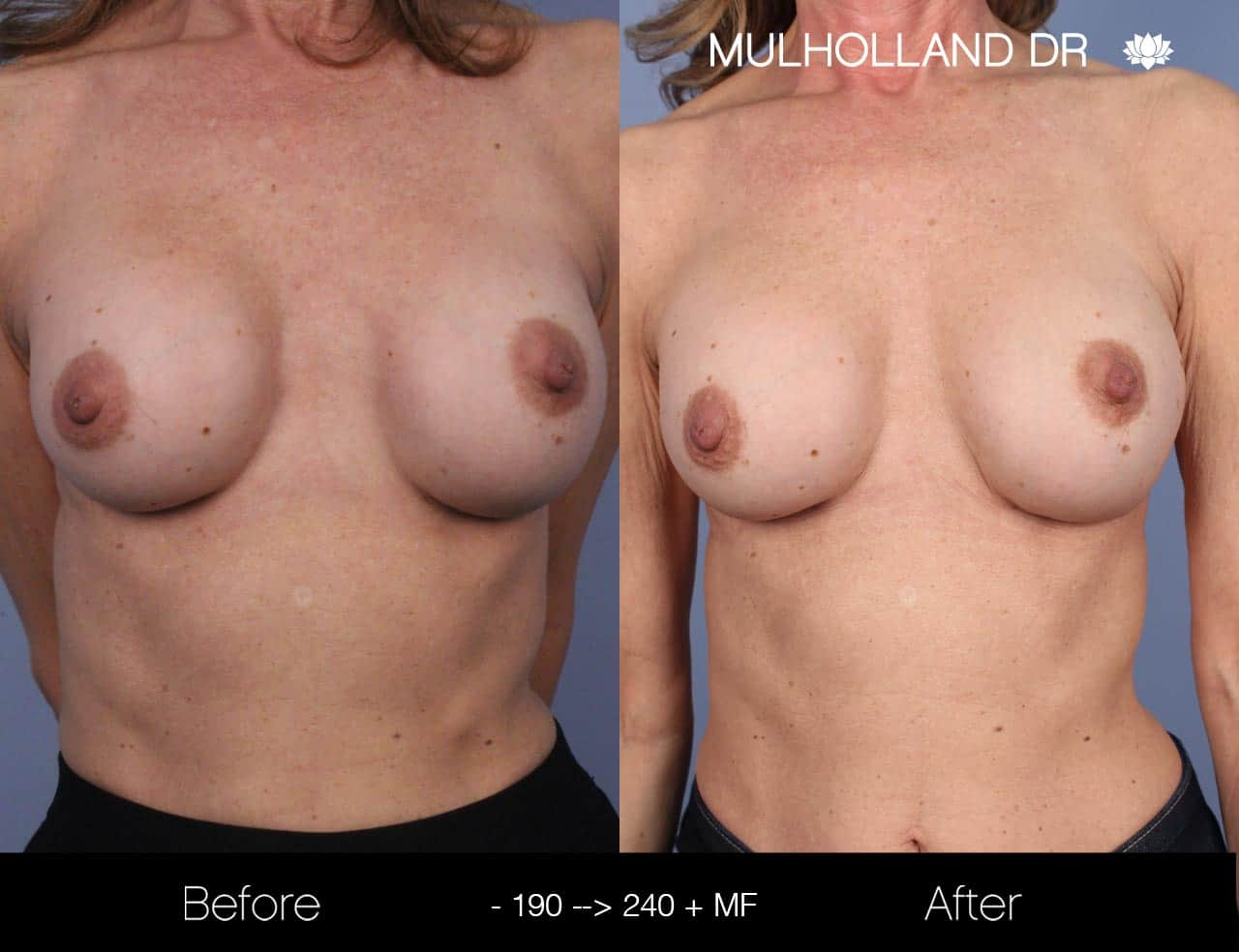 Fat Grafting Breast Augmentation - Before and After Gallery – Photo 26