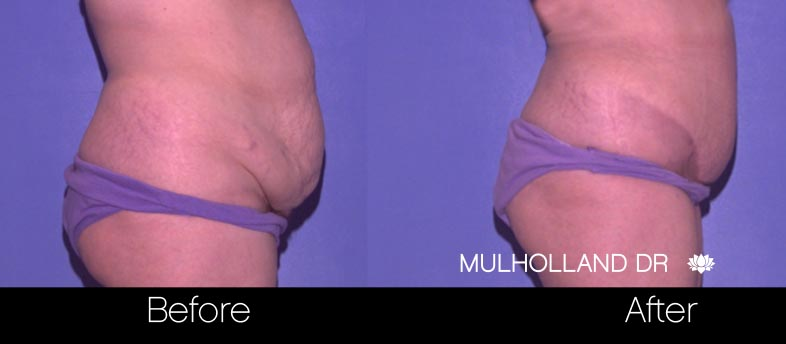 Mini Tummy Tuck - Before and After Gallery – Photo 27