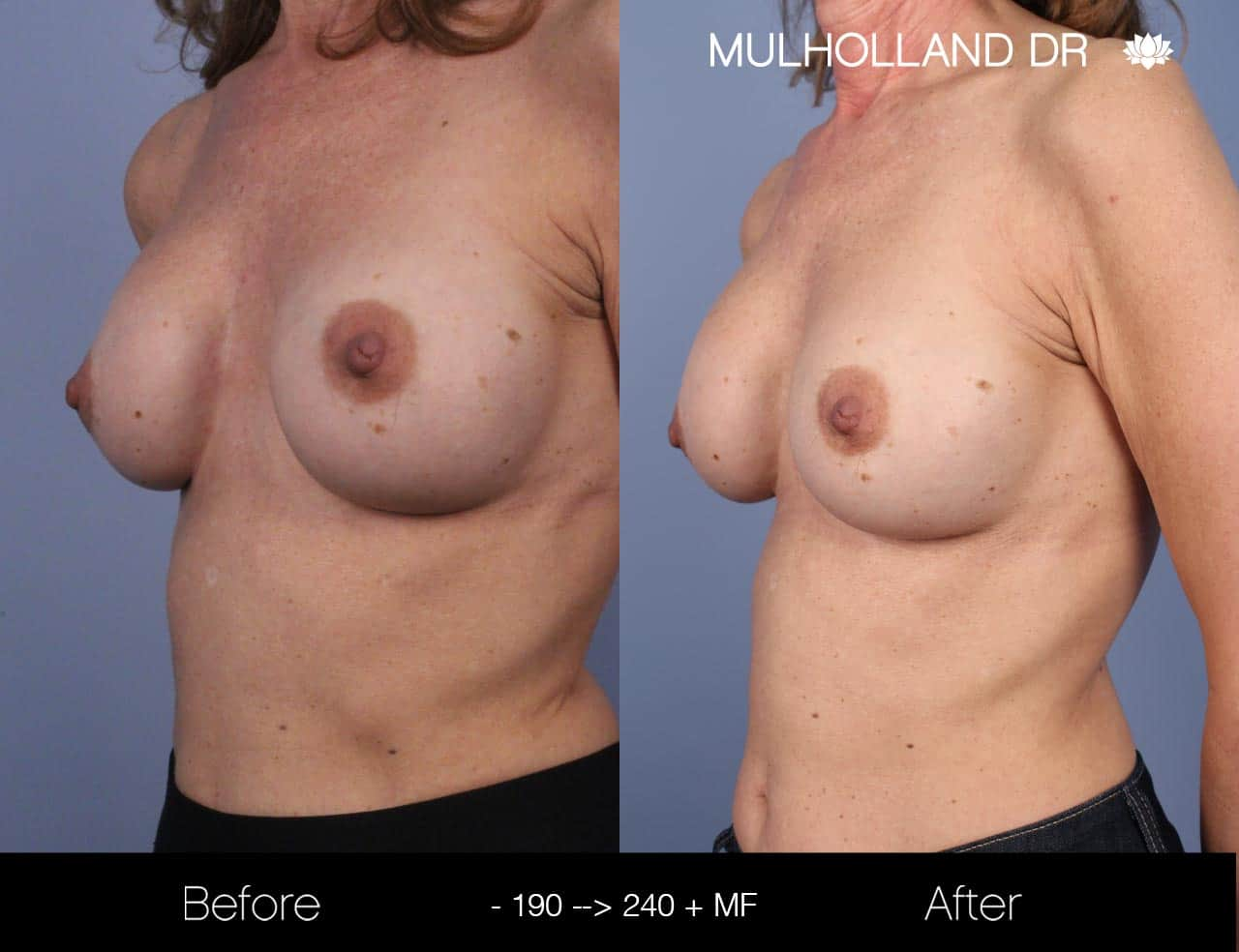Fat Grafting Breast Augmentation - Before and After Gallery – Photo 27