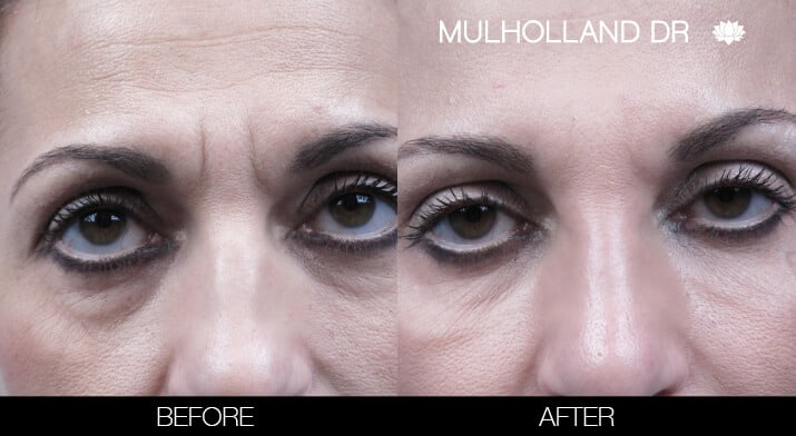 Fractional Erbium Laser - Before and After Gallery – Photo 20