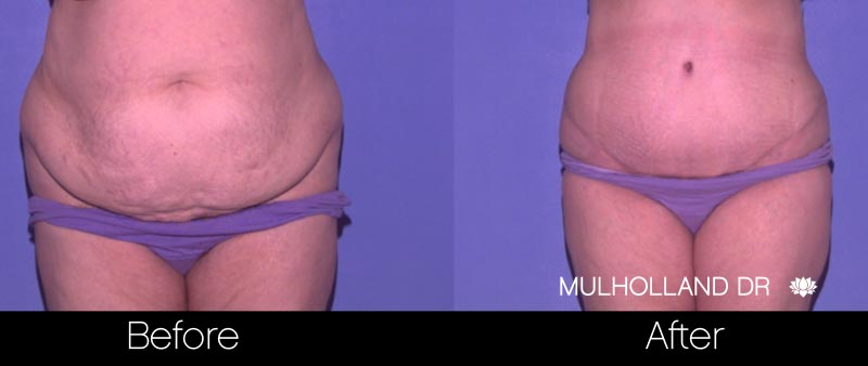 Mini Tummy Tuck - Before and After Gallery – Photo 28