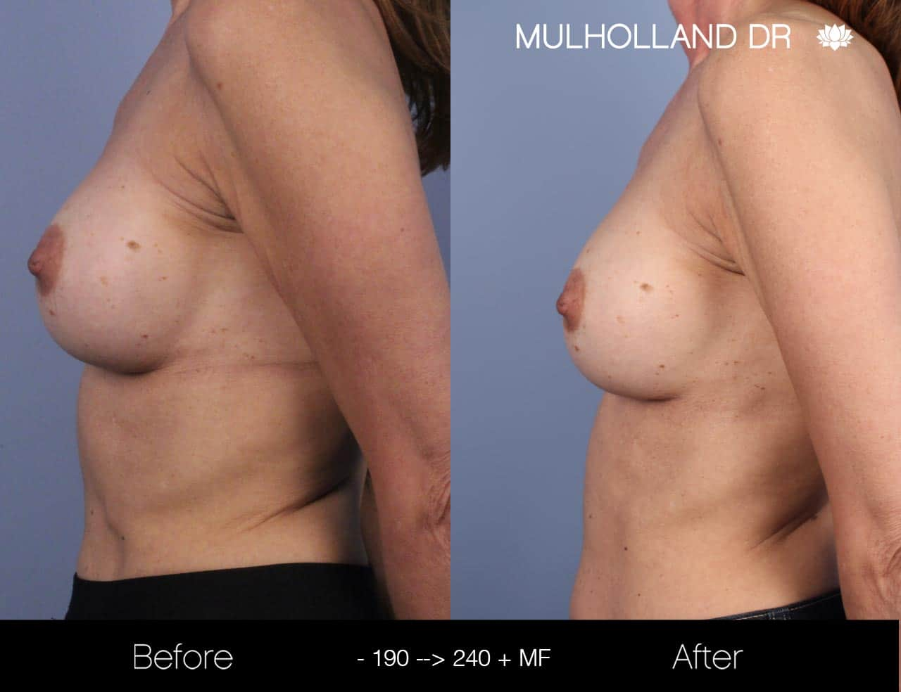 Fat Grafting Breast Augmentation - Before and After Gallery – Photo 28