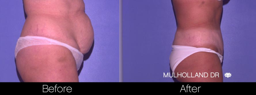 Mini Tummy Tuck - Before and After Gallery – Photo 29