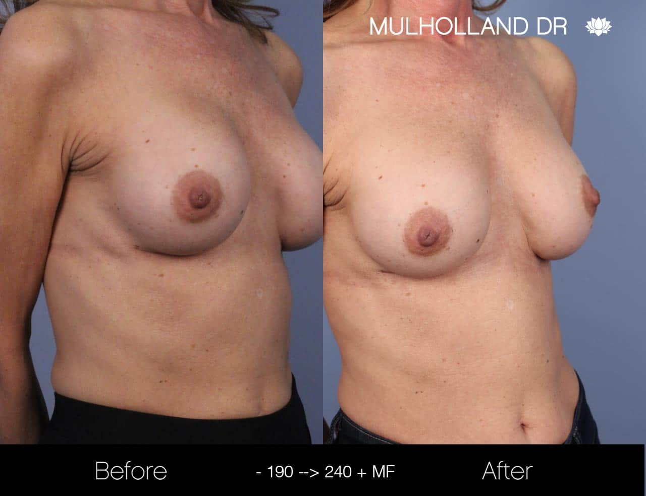 Fat Grafting Breast Augmentation - Before and After Gallery – Photo 29