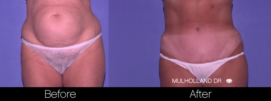 Mini Tummy Tuck - Before and After Gallery – Photo 30