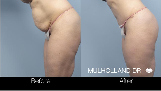 Tummy Tuck - Before and After Gallery – Photo 19