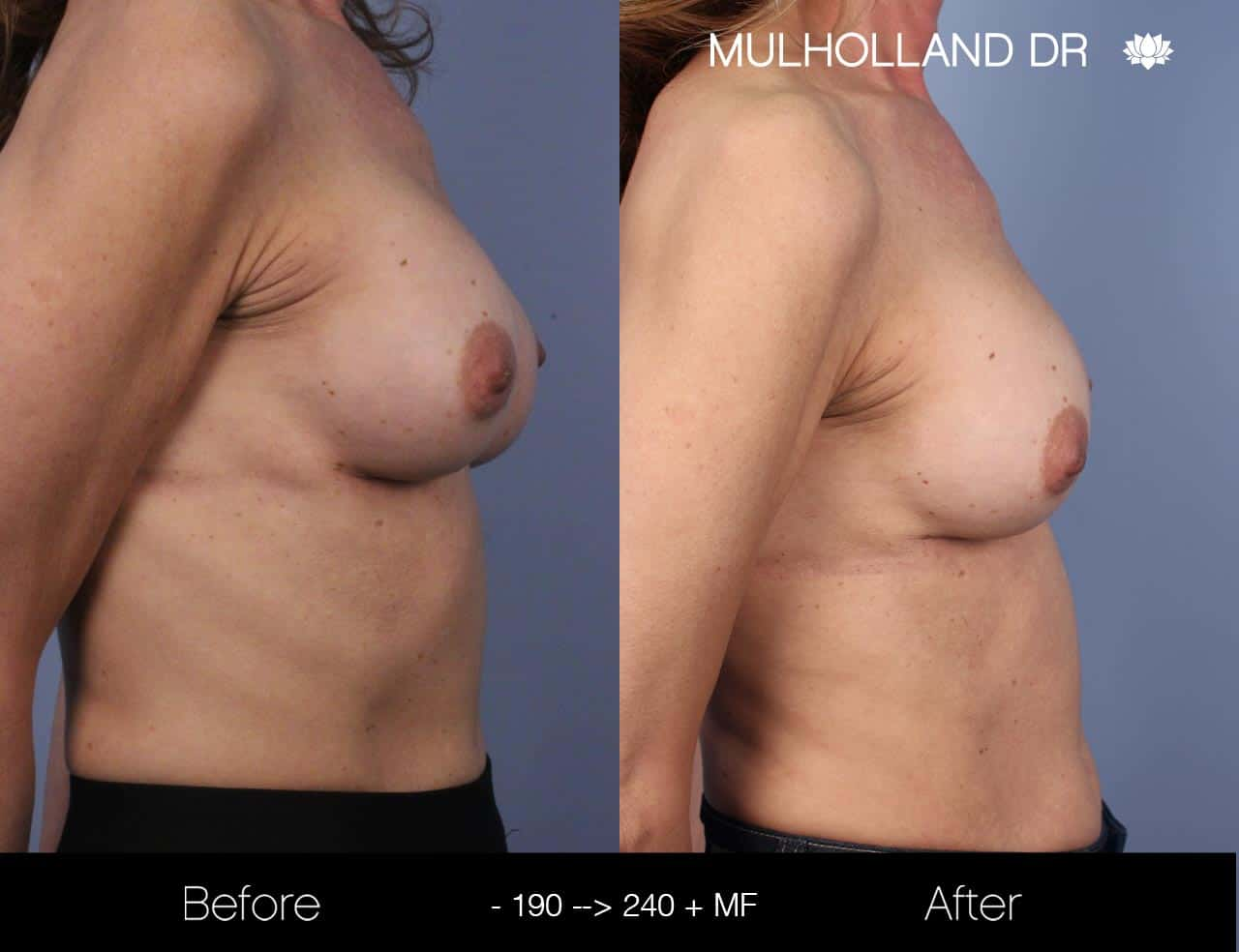 Fat Grafting Breast Augmentation - Before and After Gallery – Photo 30