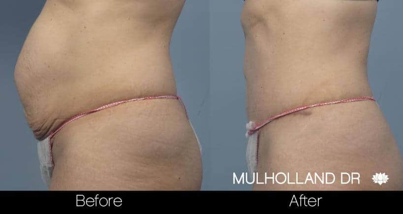 Tummy Tuck - Before and After Gallery – Photo 21