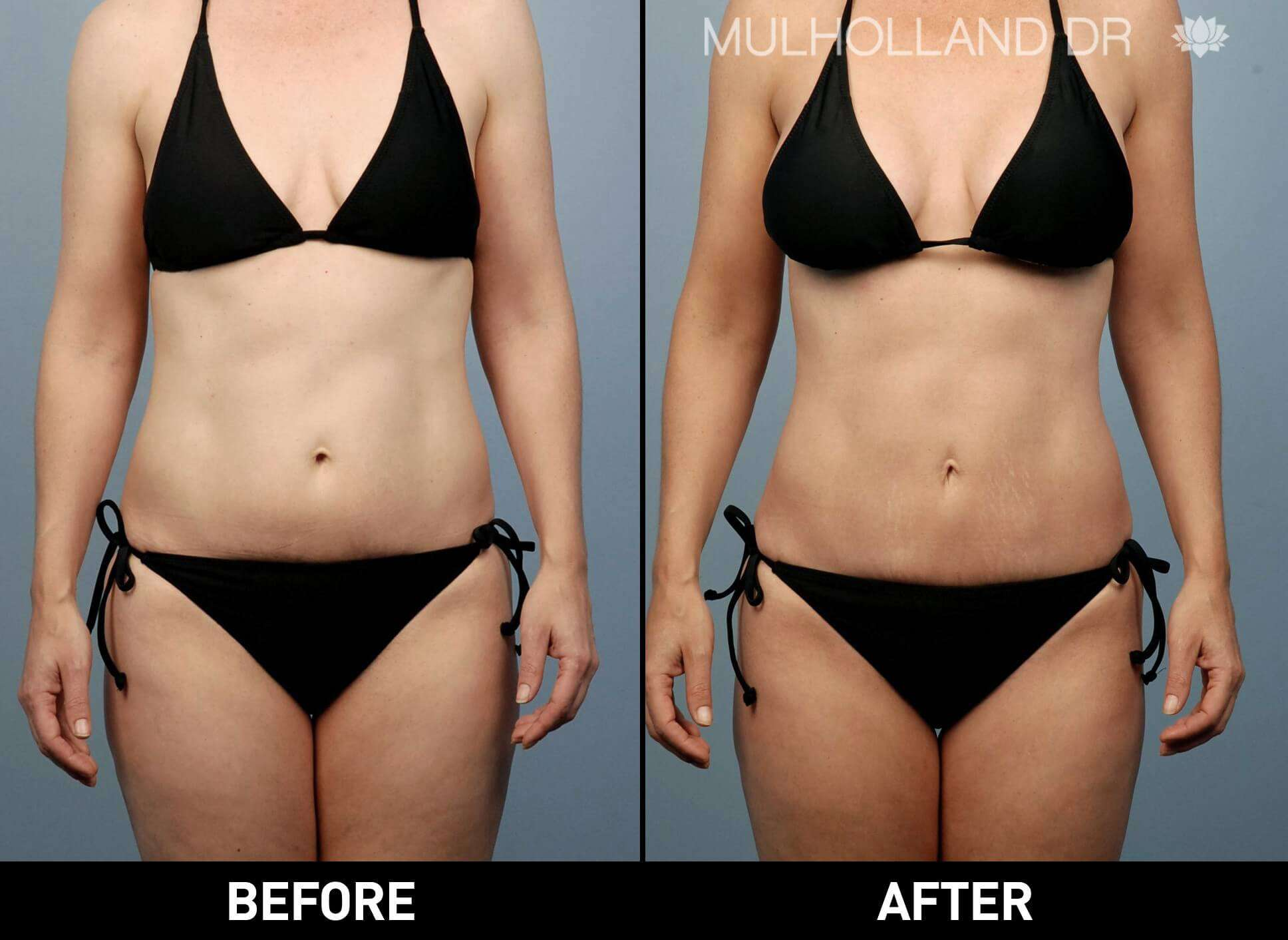 Tummy Tuck - Before and After Gallery – Photo 33
