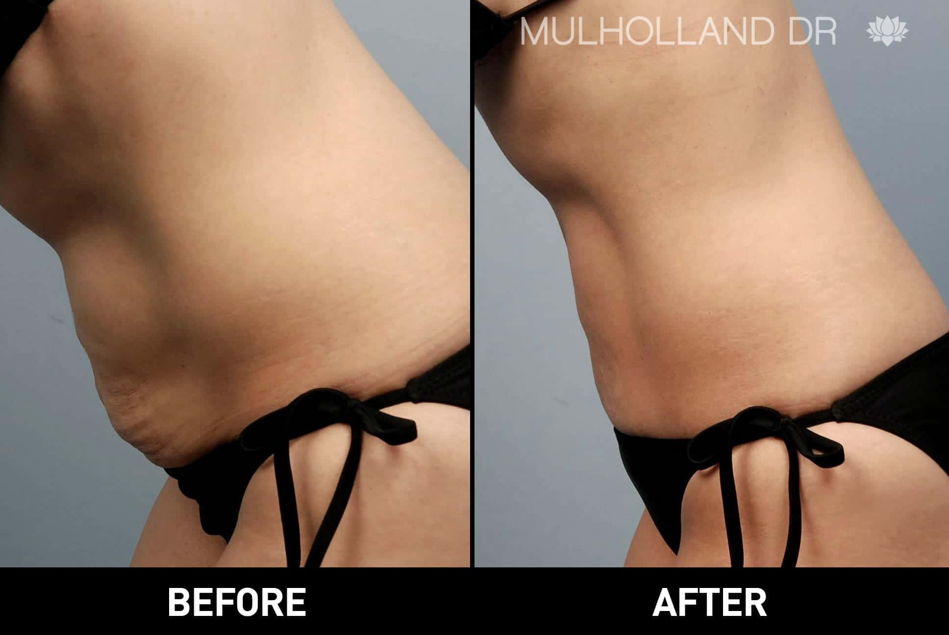 Tummy Tuck - Before and After Gallery – Photo 34