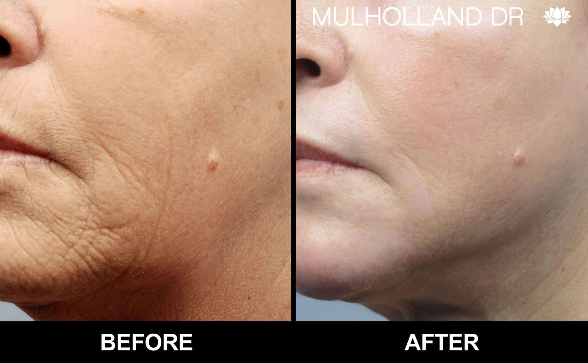Fractional Erbium Laser - Before and After Gallery – Photo 40