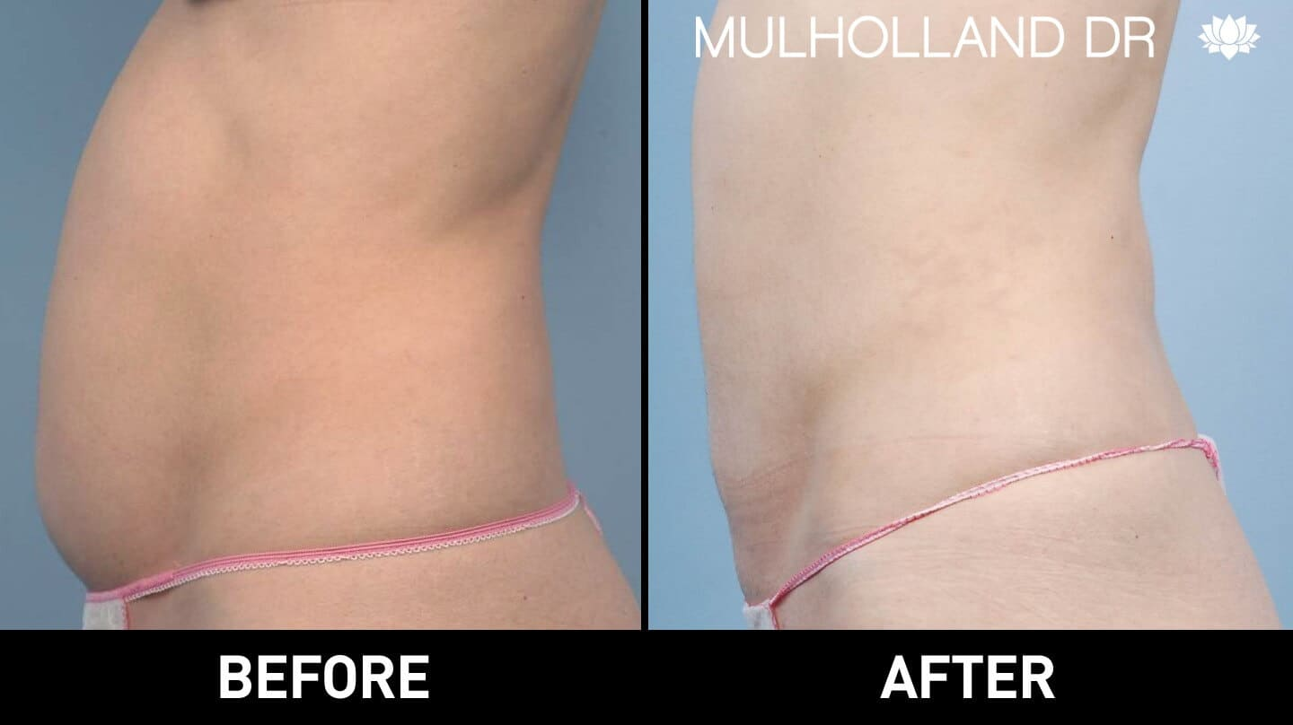 Smart Lipo - Before and After Gallery – Photo 17