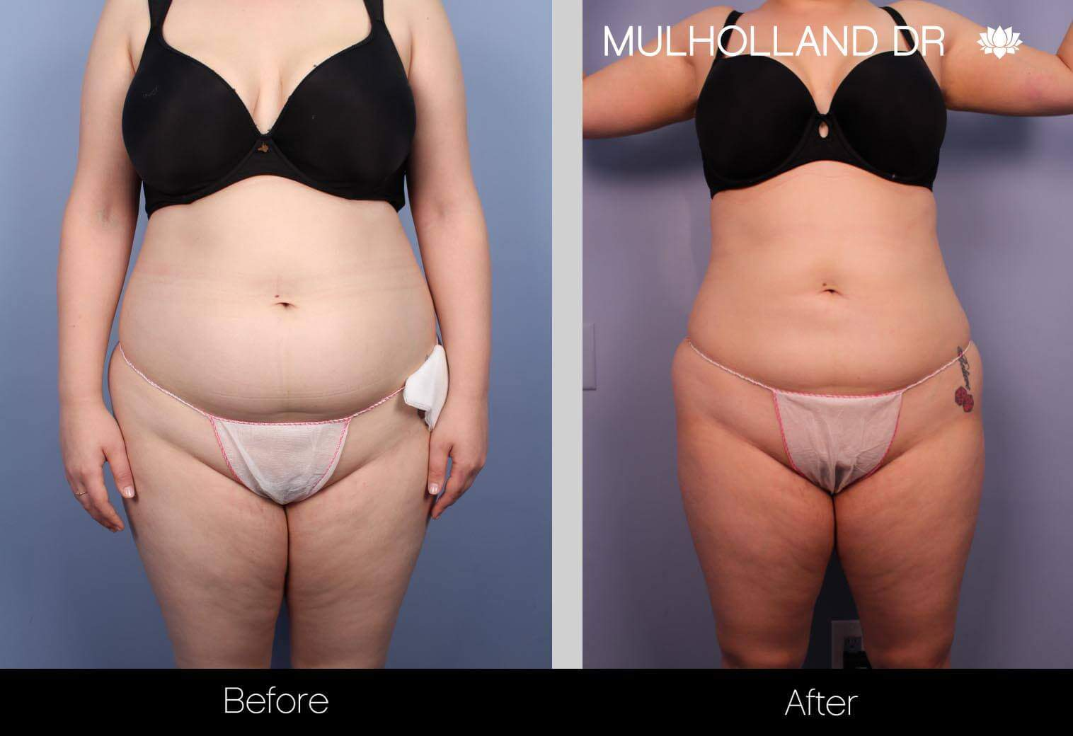 Smart Lipo - Before and After Gallery – Photo 20