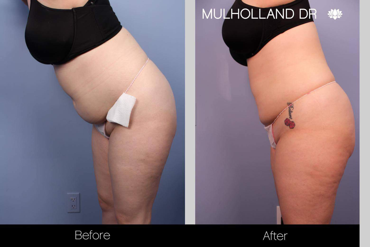 Smart Lipo - Before and After Gallery – Photo 22