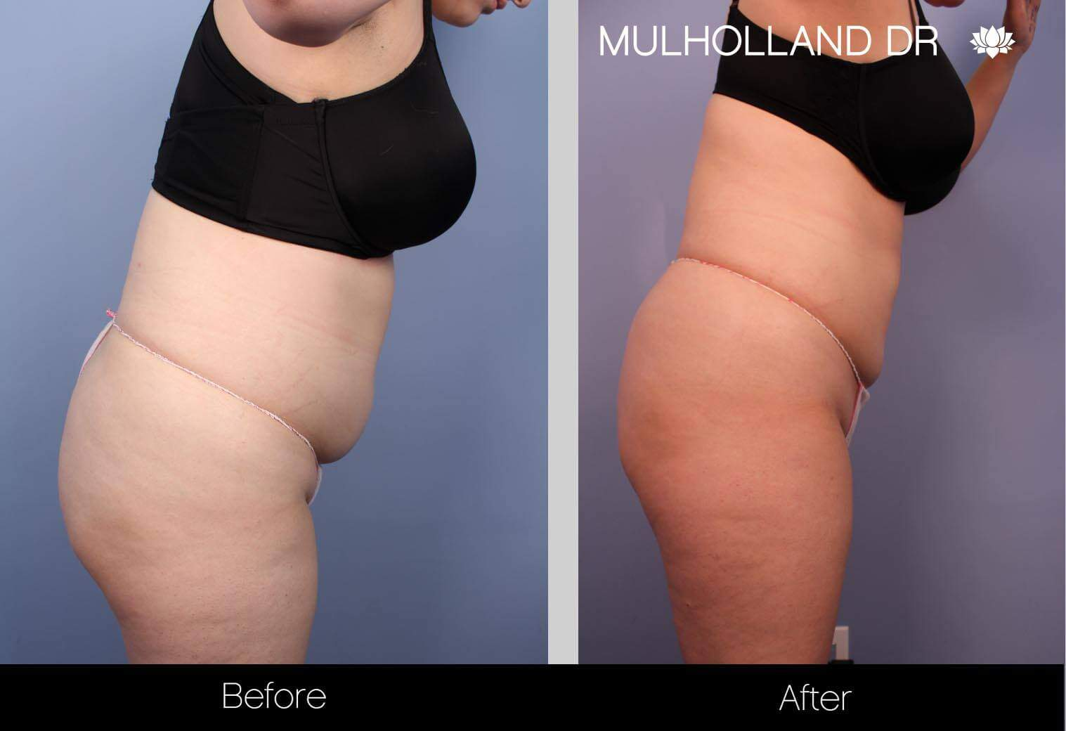 Smart Lipo - Before and After Gallery – Photo 27