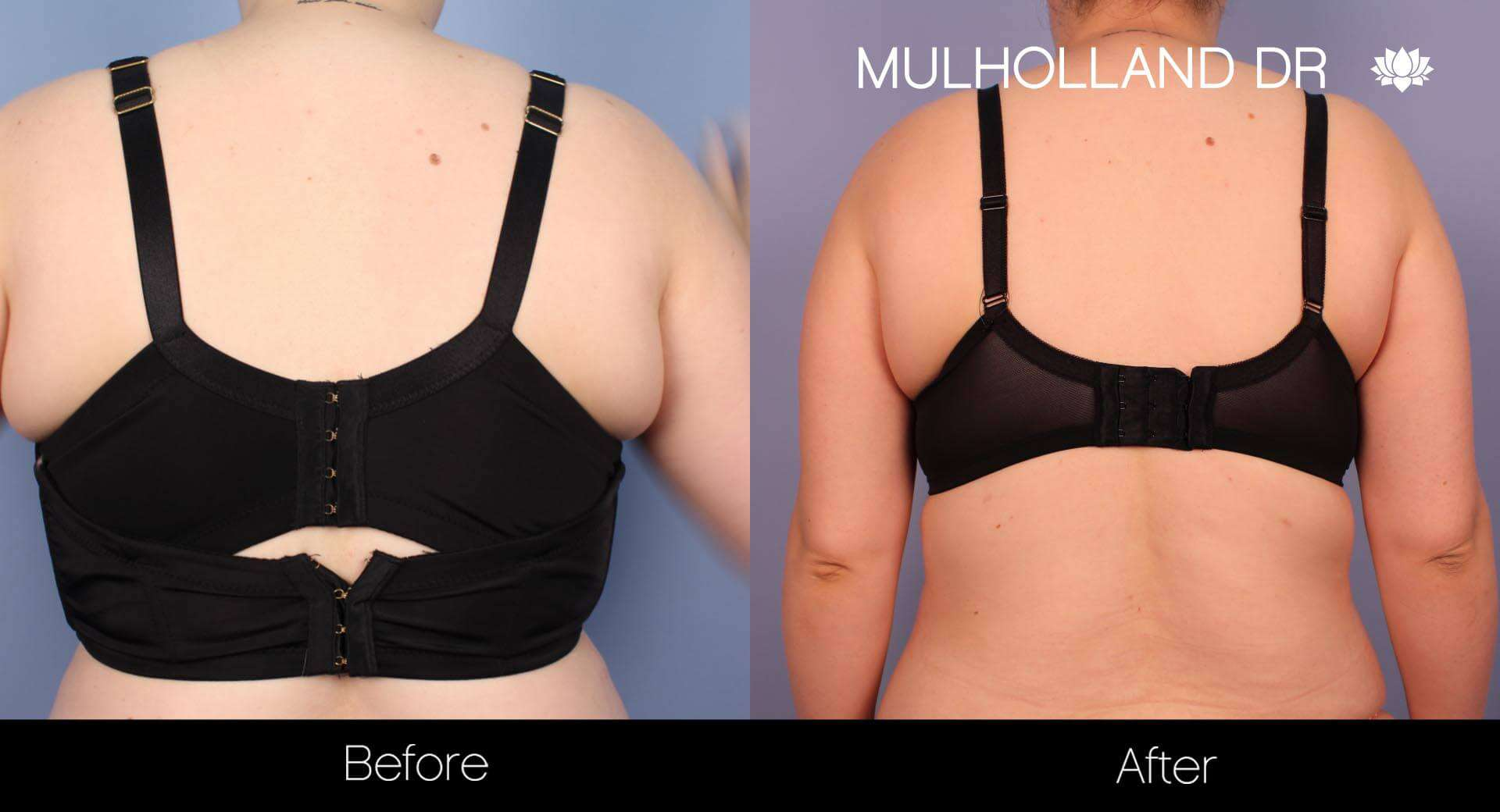 Smart Lipo - Before and After Gallery – Photo 28
