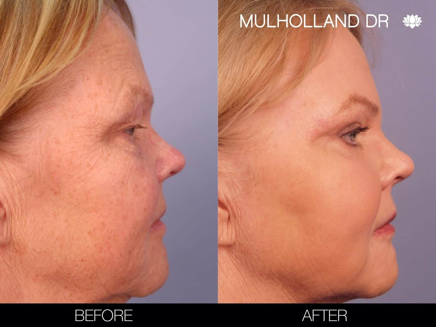 Fractional Erbium Laser - Before and After Gallery – Photo 29