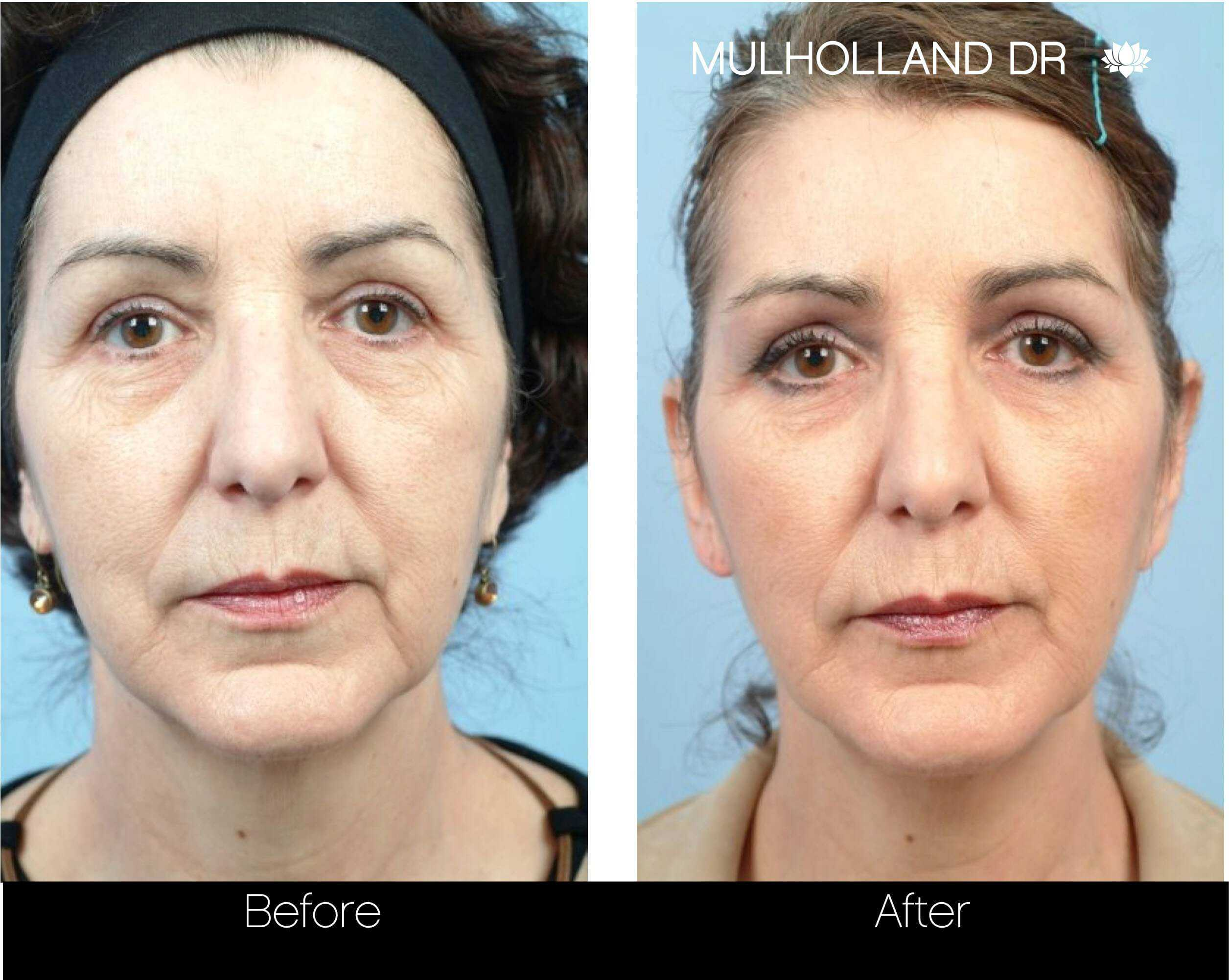 Fractional Erbium Laser - Before and After Gallery – Photo 78