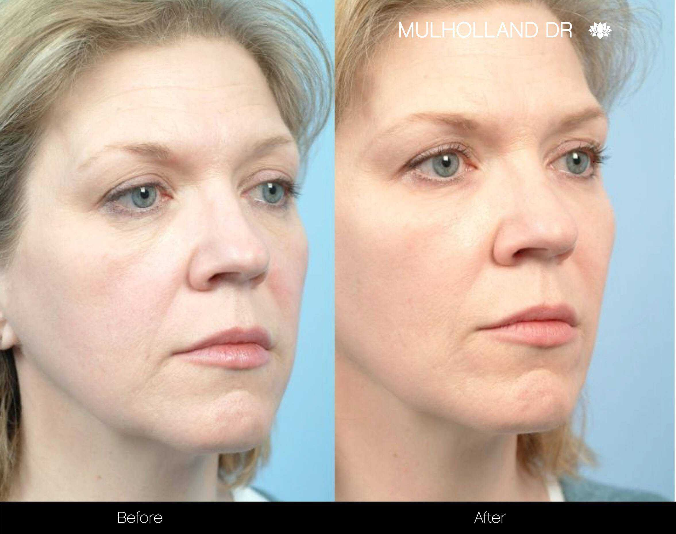 Fractional Erbium Laser - Before and After Gallery – Photo 80