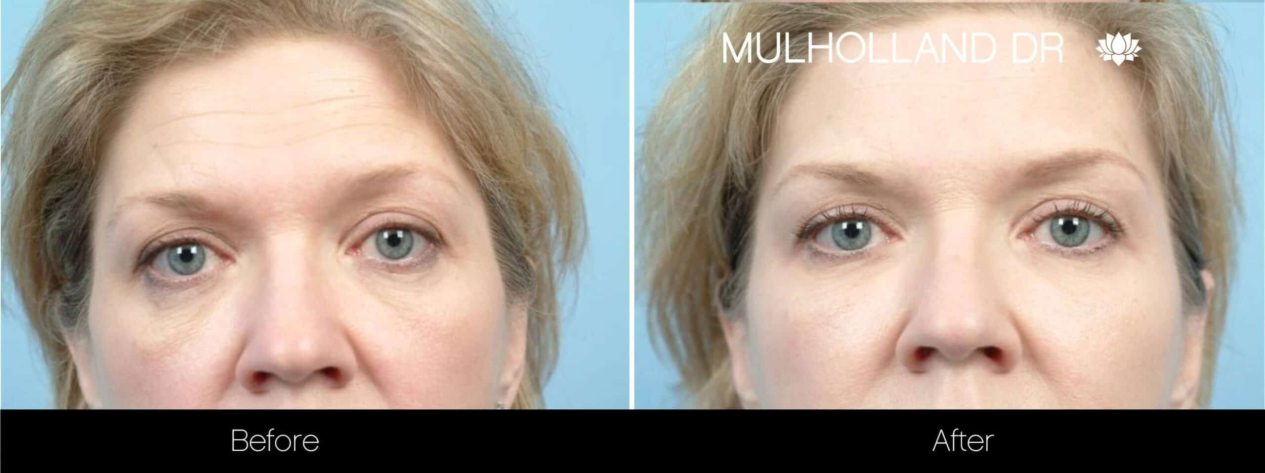 Fractional Erbium Laser - Before and After Gallery – Photo 81
