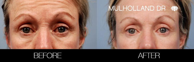 Fractional Erbium Laser - Before and After Gallery – Photo 35