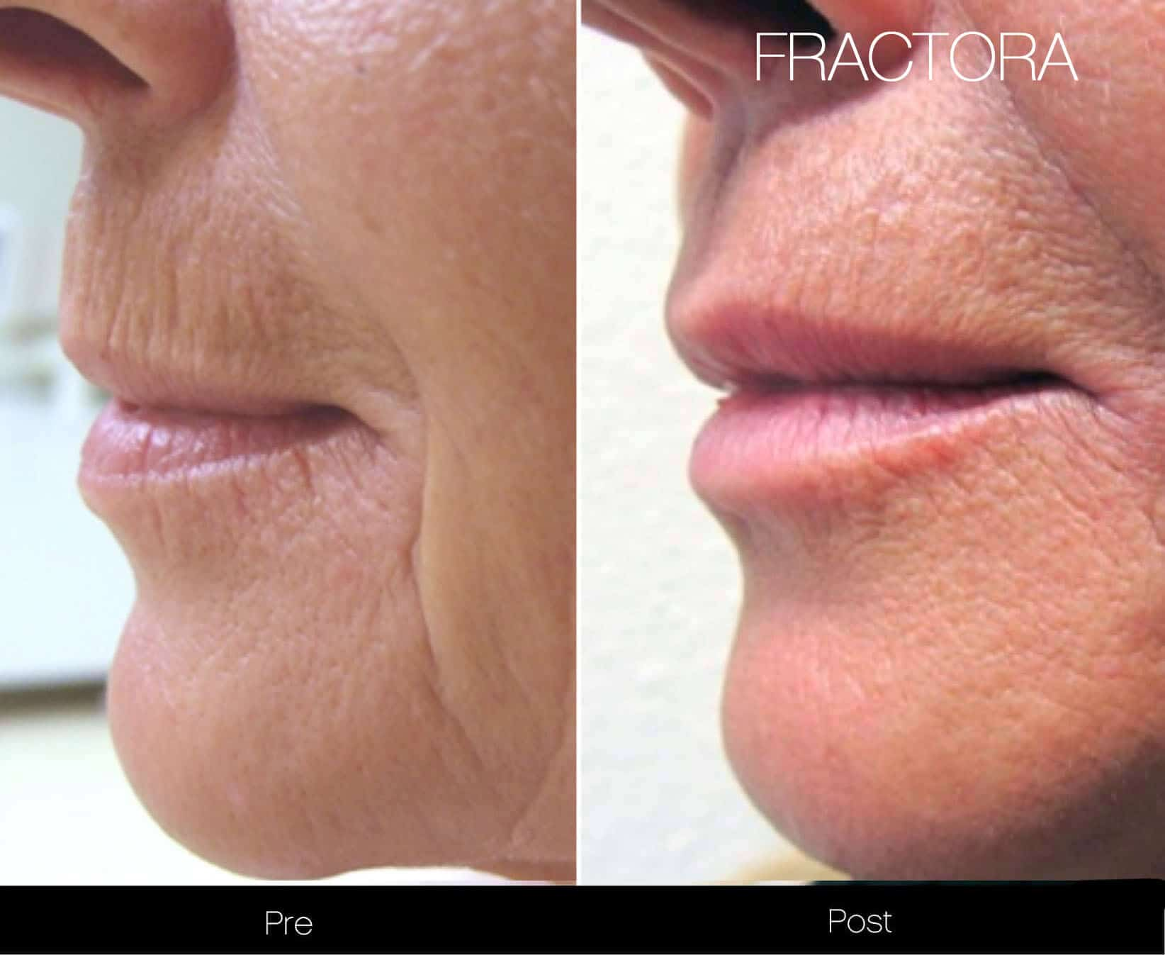 Fractional Erbium Laser - Before and After Gallery – Photo 37