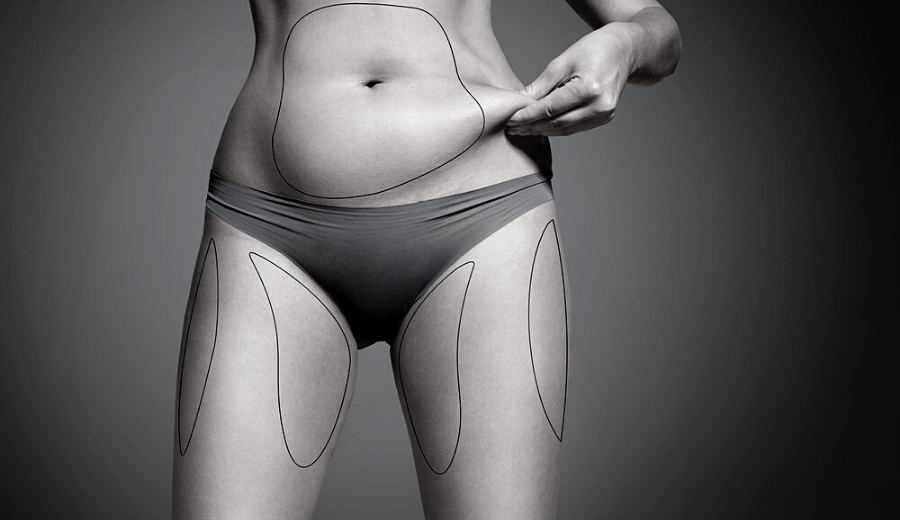 4 Things You Can't Do After Liposuction