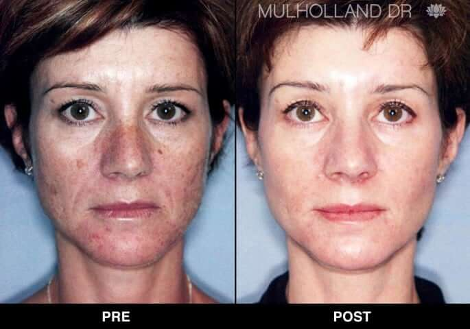 FotoFacial - Before and After Gallery – Photo 17
