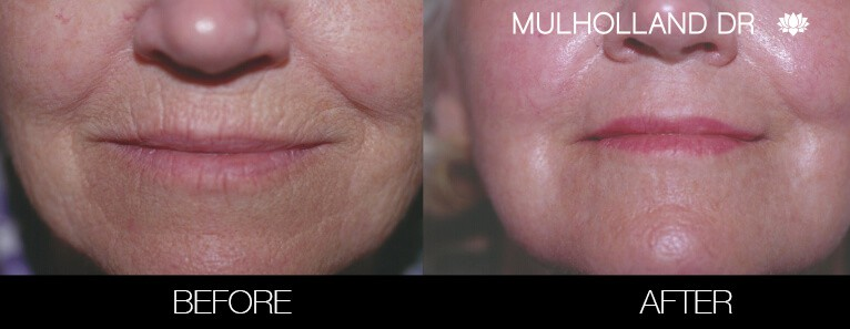 Laser Skin Resurfacing - Before and After Gallery – Photo 33
