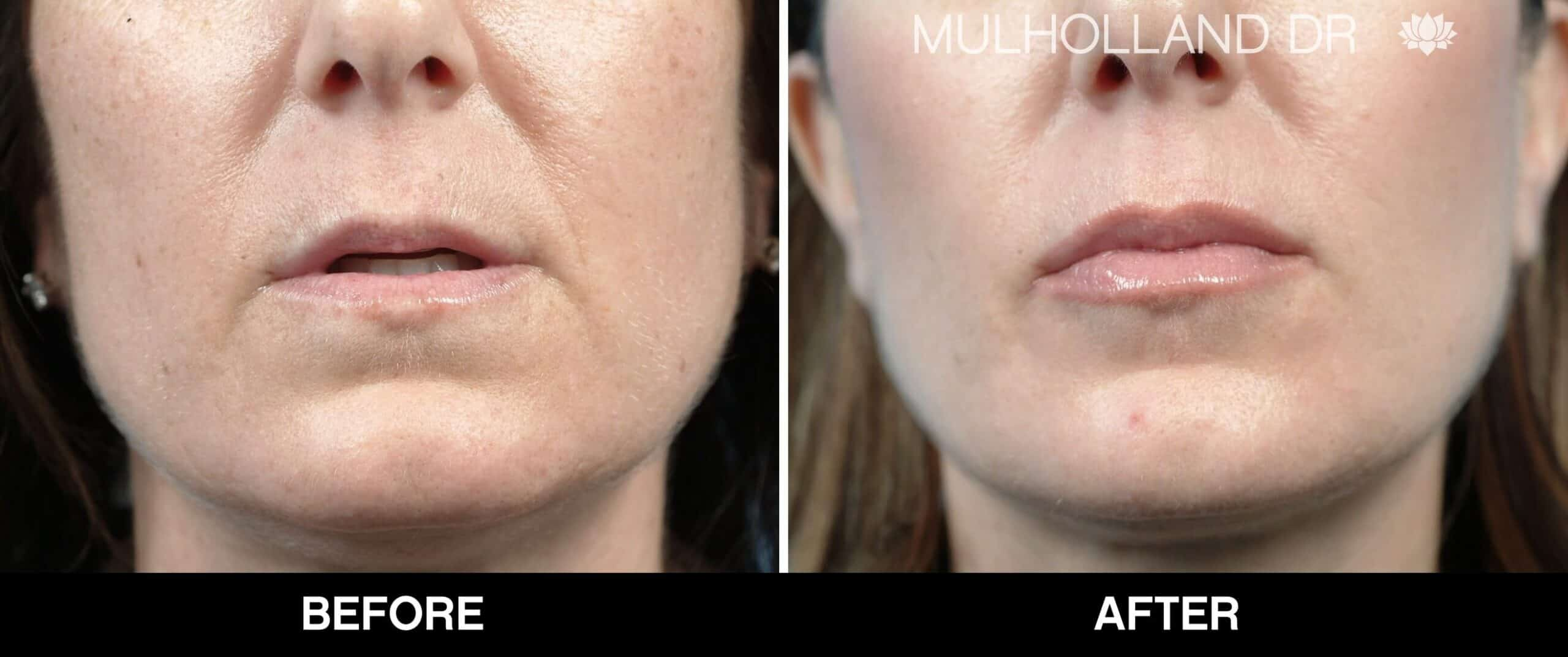 Lip Augmentation- Before and After Gallery – Photo 15