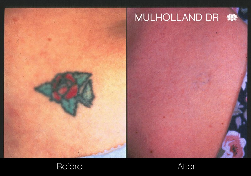 Laser Tattoo Removal - Before and After Gallery – Photo 11