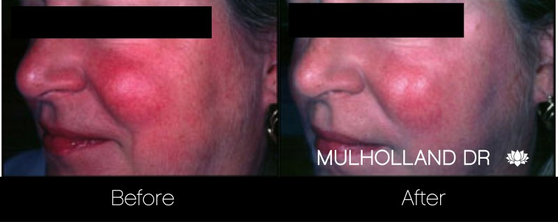 FotoFacial - Before and After Gallery – Photo 19