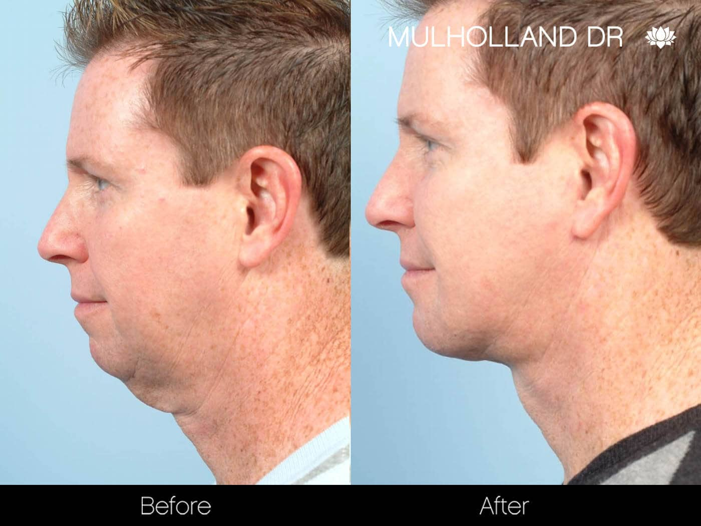 Chin Implant - Before and After Gallery – Photo 11