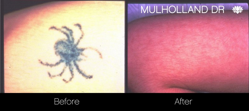 Laser Tattoo Removal - Before and After Gallery – Photo 13