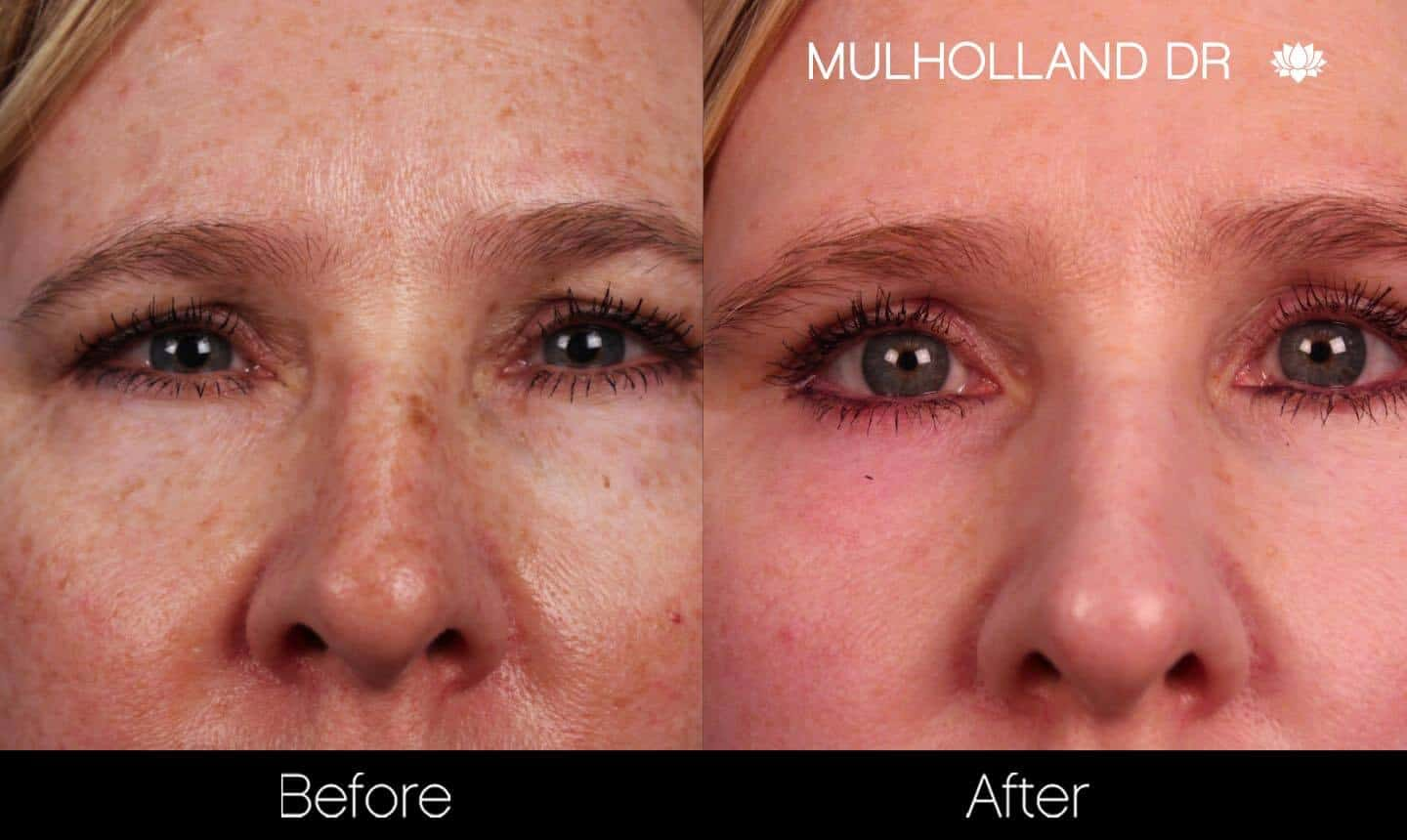FotoFacial - Before and After Gallery – Photo 24