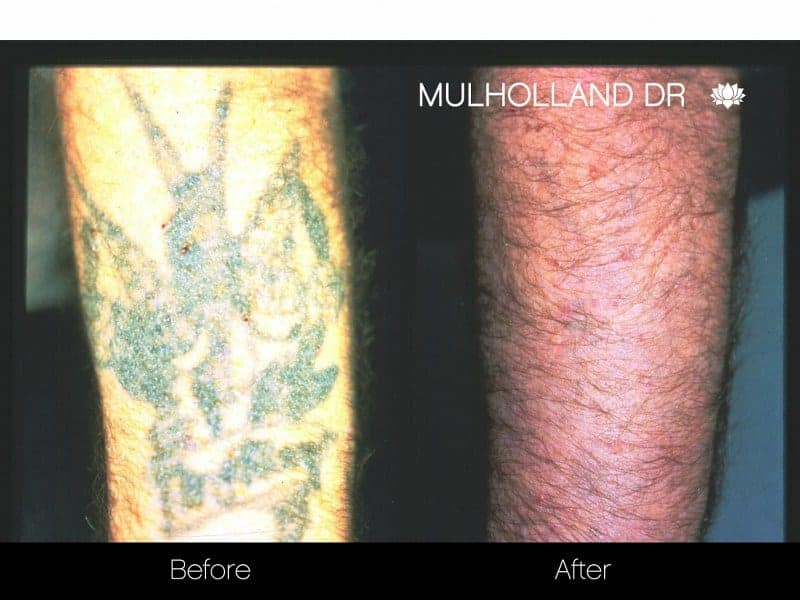 Laser Tattoo Removal - Before and After Gallery – Photo 14