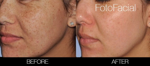 FotoFacial - Before and After Gallery – Photo 28