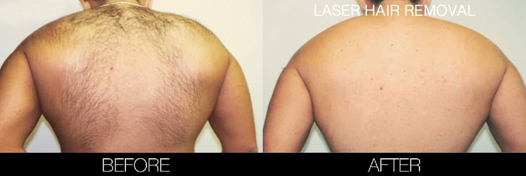 Laser Hair Removal - Patient Before and After Gallery – Photo 15