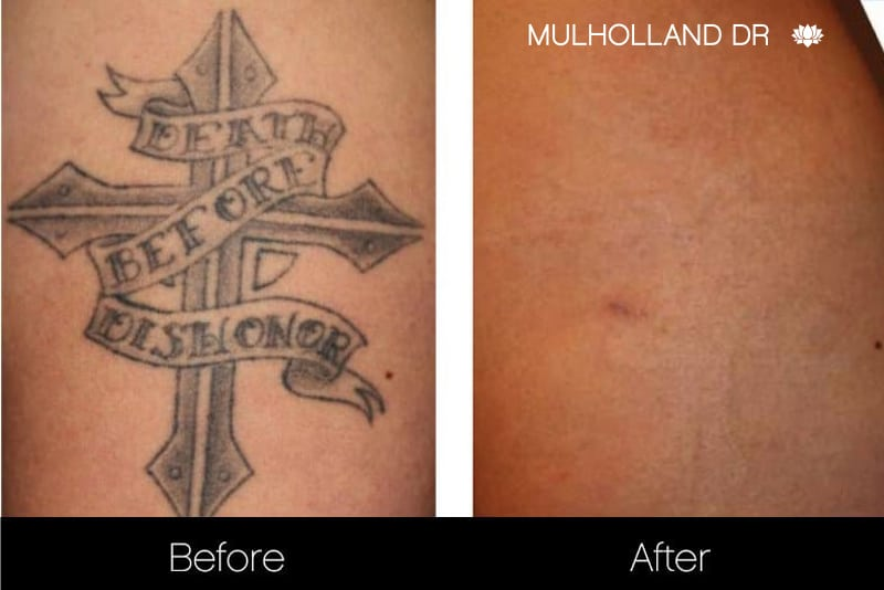 Laser Tattoo Removal - Before and After Gallery – Photo 15