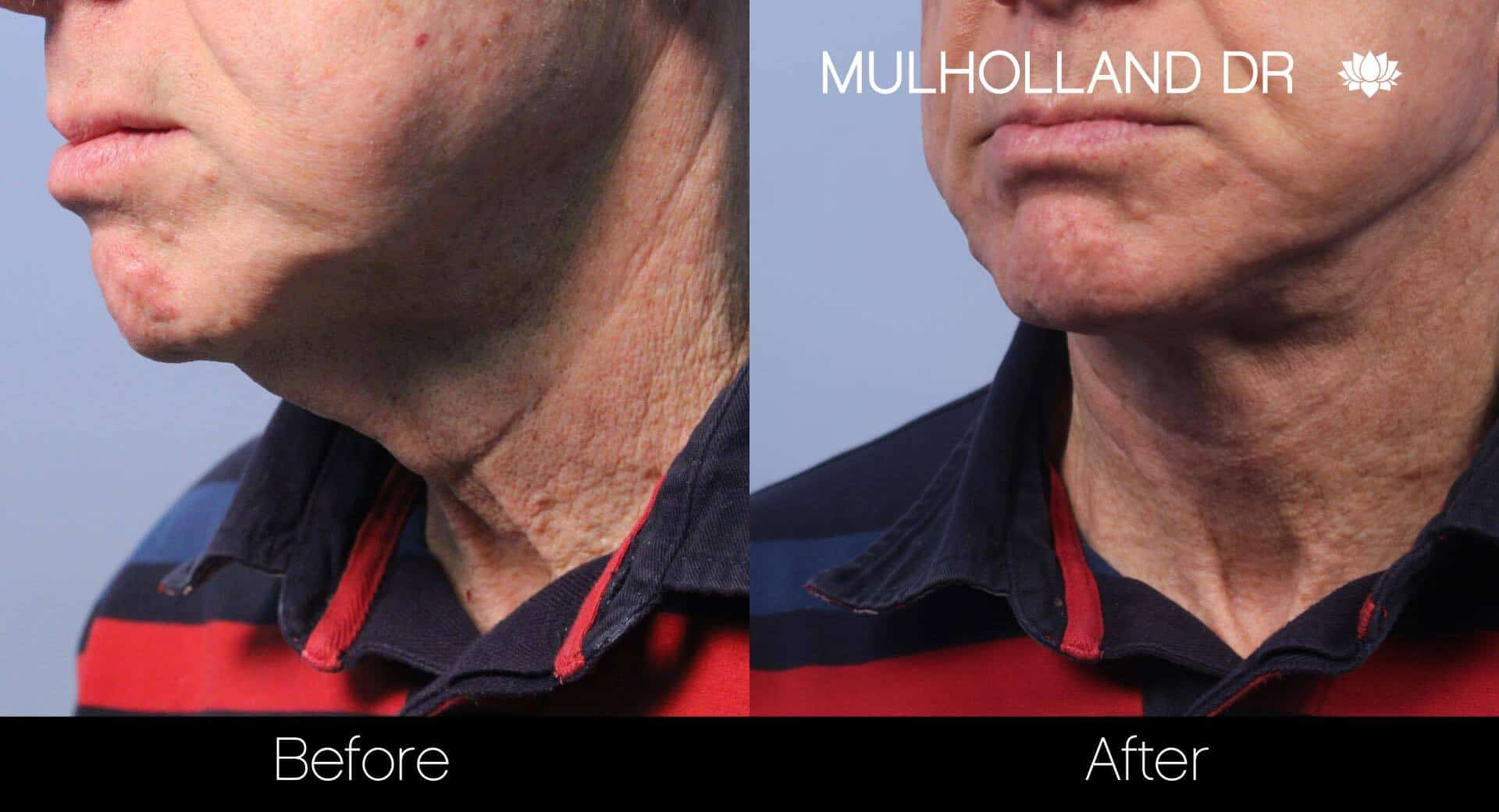 Chin Implant - Before and After Gallery – Photo 14