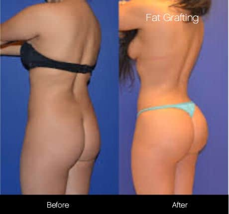 Brazilian Butt Lift - Before and After Gallery – Photo 15