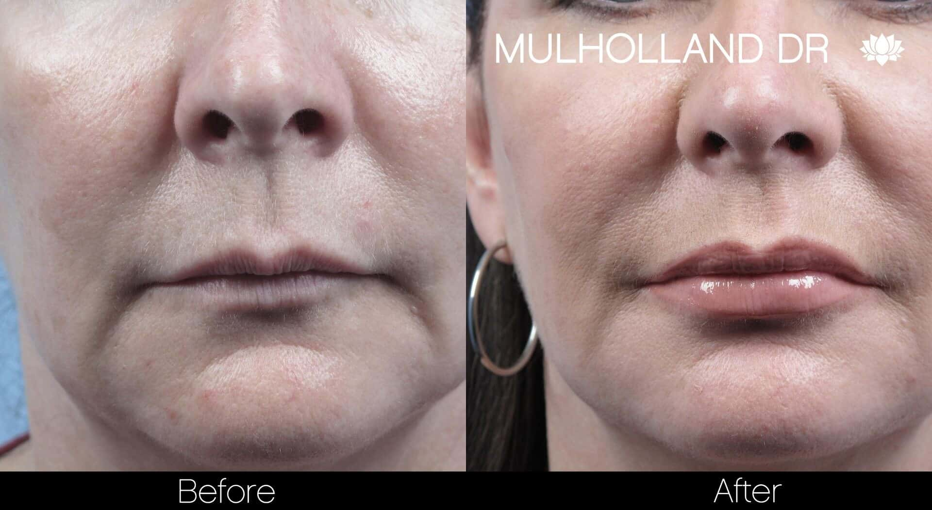 Lip Augmentation- Before and After Gallery – Photo 19